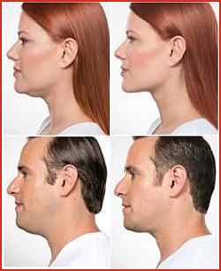 Kybella injections - cosmetic tratments