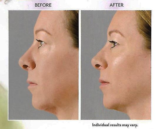 Injectable Facial Gel - Juvederm Voluma XC