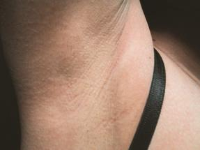 Laser Hair Removal - Underarm Hair