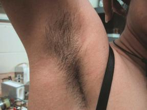 Laser Hair Removal - Underarms