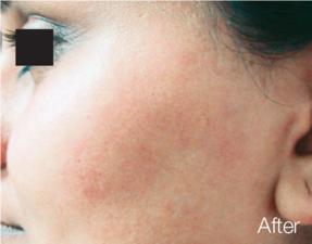 Laser Hair Removal - Facial
